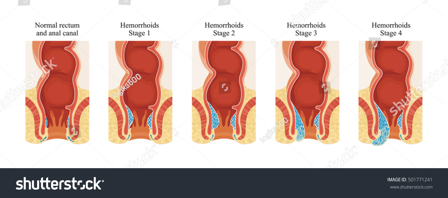 stock-photo-hemorrhoids-stage-501771241